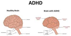 ADHA Brain